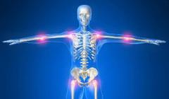 Artritis-y-reumatismo